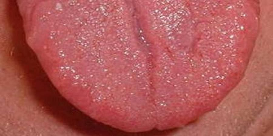 Doctors reconstruct tongue with flesh from thigh