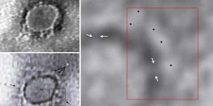 First images from India of virus causing Covid-19 captured by scientists